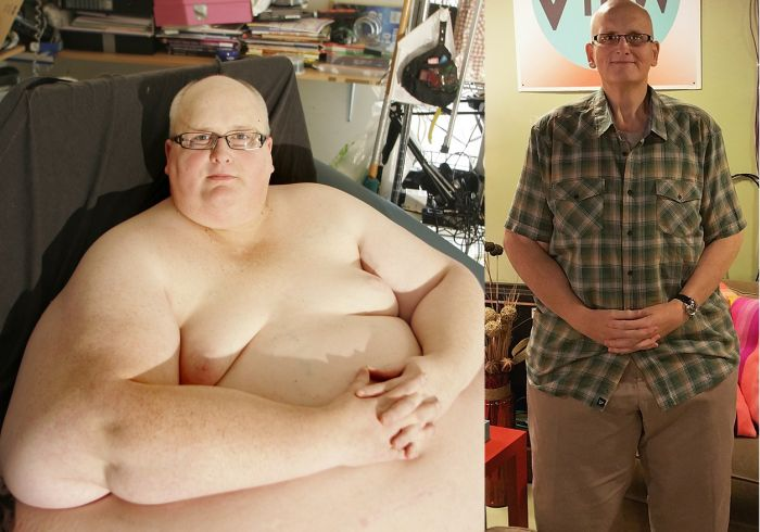World's Fattest Man Drops 700 lbs (5 pics)