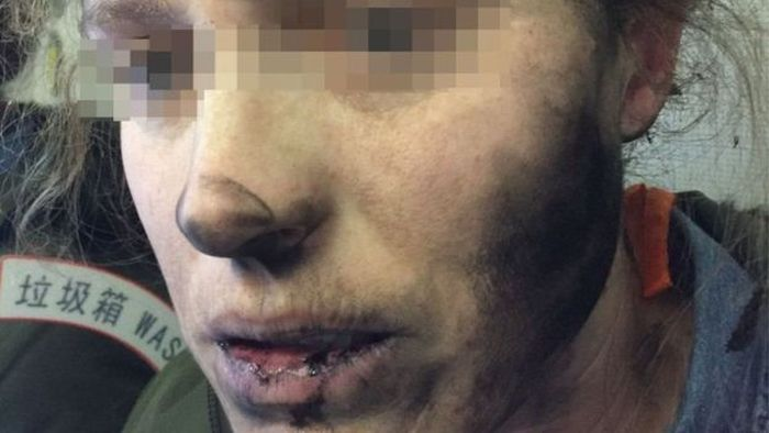 Woman Gets Burned By Exploding Headphones (2 pics)