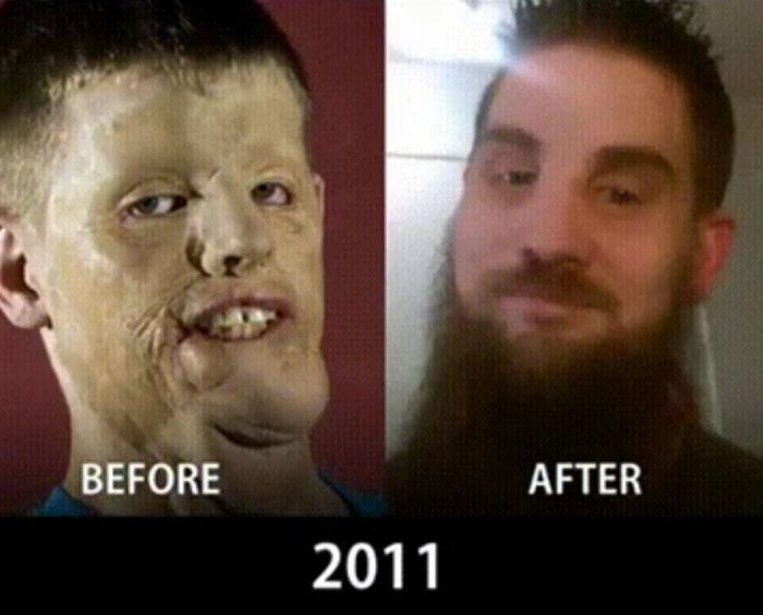 How Face Transplants Have Evolved (9 pics)