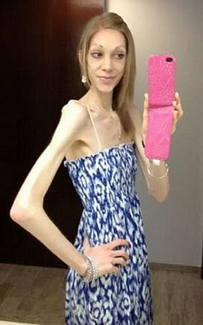 Woman Goes From Anorexic To Bodybuilder In Just 18 Months (6 pics)