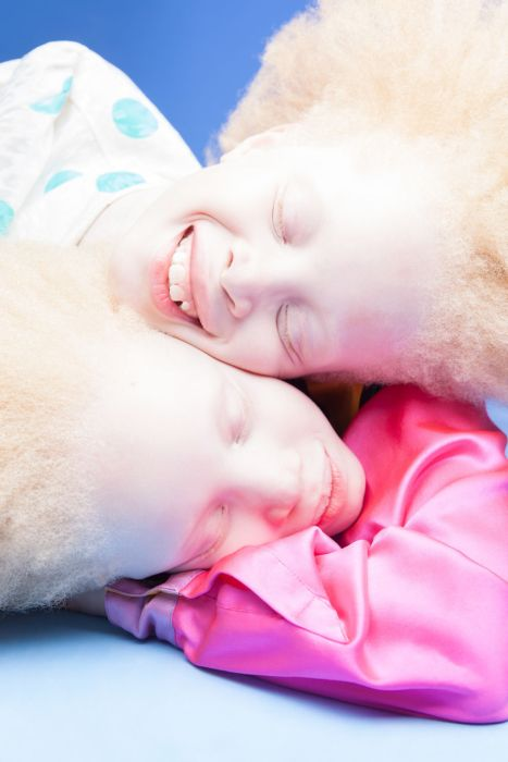 Brazilian Albino Twins From Are Taking The Fashion Industry By Storm (11 pics)