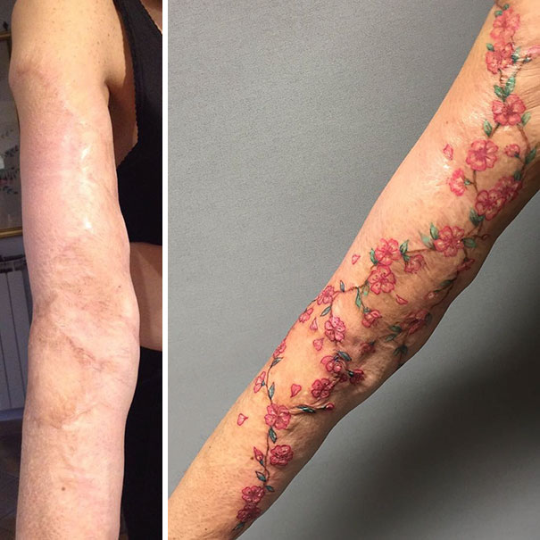 Tattoos Can Turn Scars Into Works Of Art (30 pics)