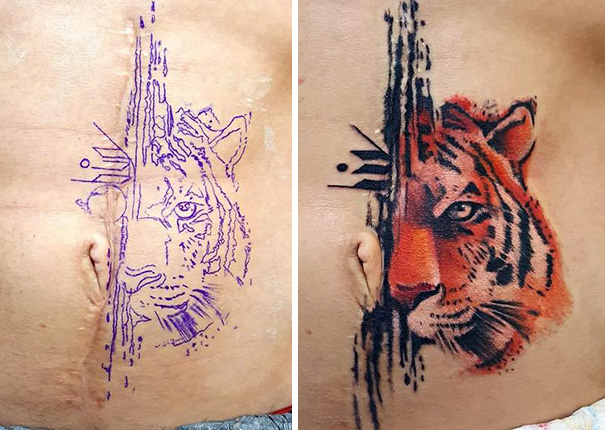 Tattoos can turn scars into works of art 30 pics for Scars turned into tattoos