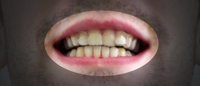 Student Proves You Don't Need Thousands Of Dollars To Fix Your Teeth (11 pics)