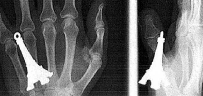 When X-Rays Reveal What You Don't Want To See (22 pics)