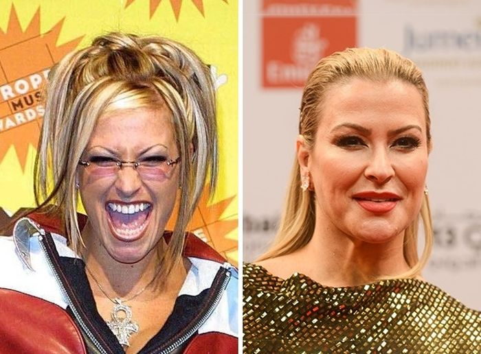 Your Favorite Celebrities Then And Now (11 pics)
