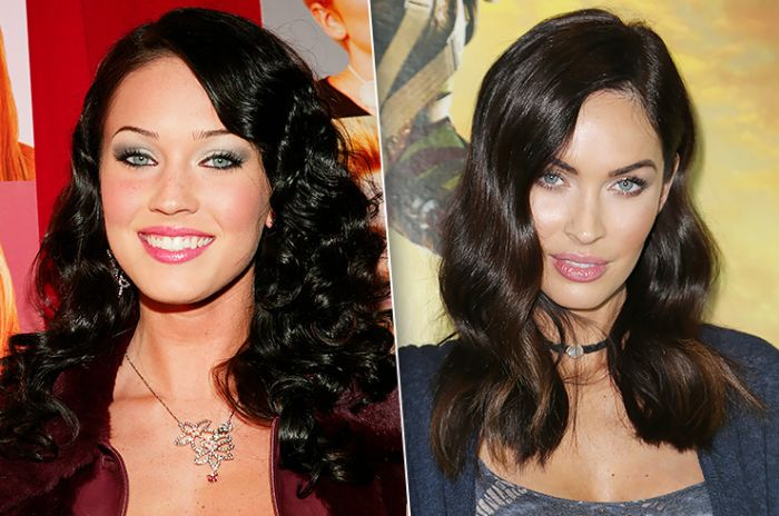 Celebrities Who Had Work Done On Their Cheekbones (10 pics)