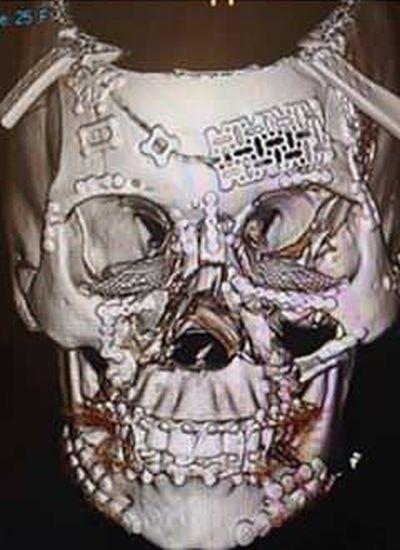 Before And After Photos Of A Reconstructed Skull (2 pics)