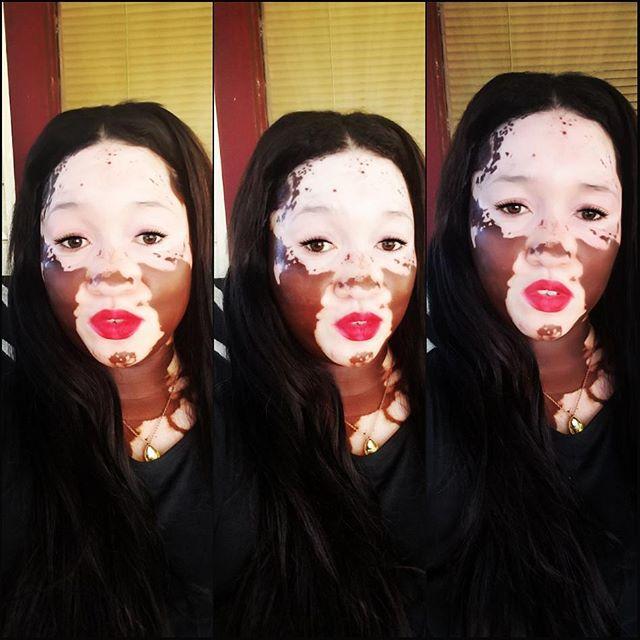 Woman With Vitiligo Becomes A Model (19 pics)