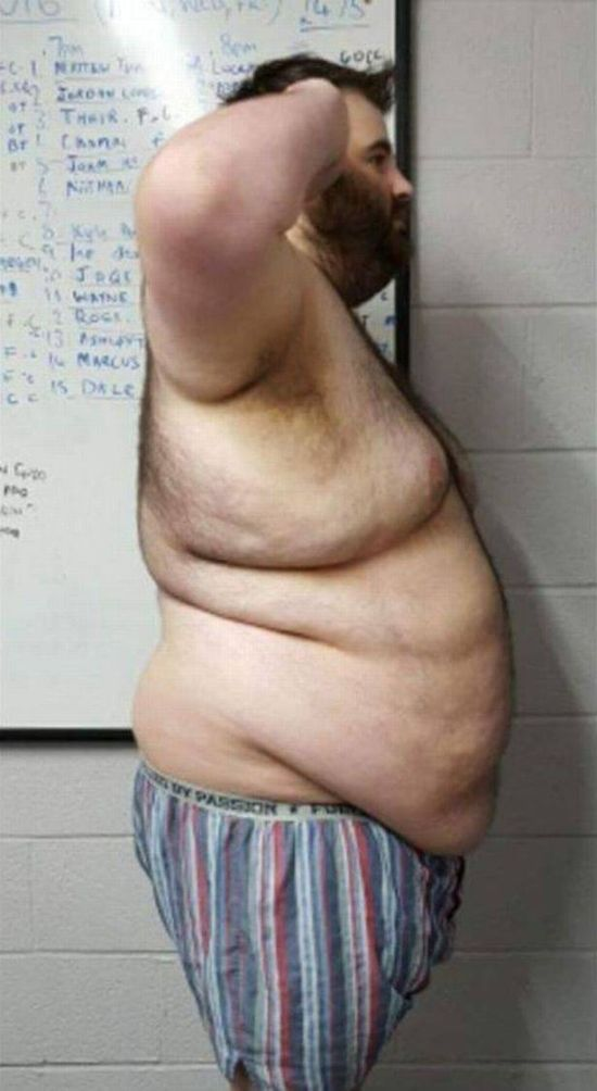 Breakup Inspires Man To Lose Weight And Get In Shape (7 pics)