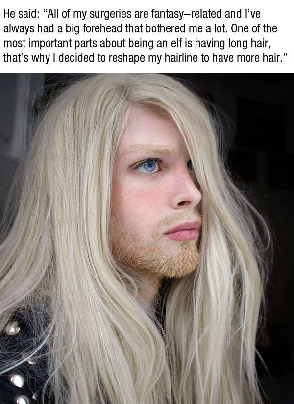 Guy Turns Himself Into An Elf After Spending $75,000 (10 pics)