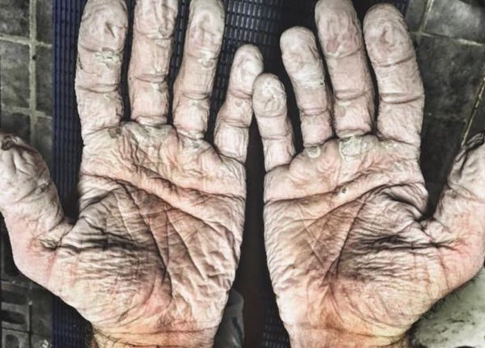 Alex Gregory Shows Off His Insane Blisters (2 pics)