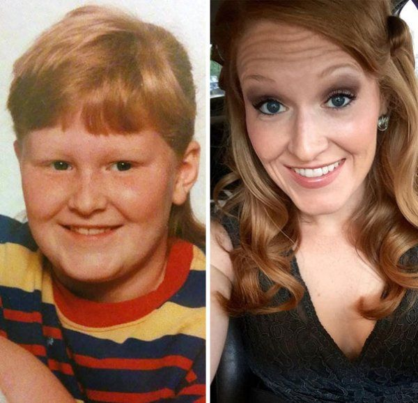 People In Their Awkward Stage (25 pics)