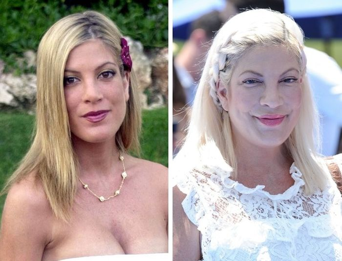 Celebrity Before And After Plastic Surgeries (10 pics)