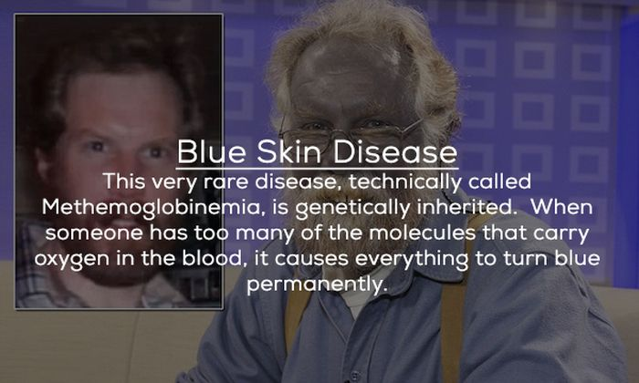 Bizarre Diseases That Medical Science Can't Explain (21 pics)