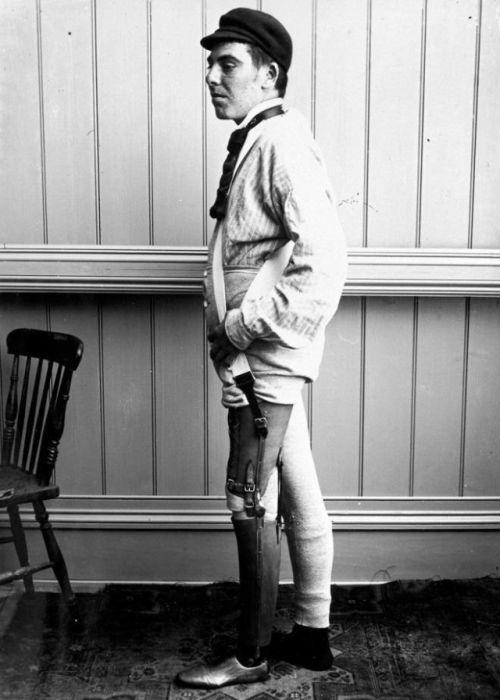Prostheses From 19th Century (20 pics)