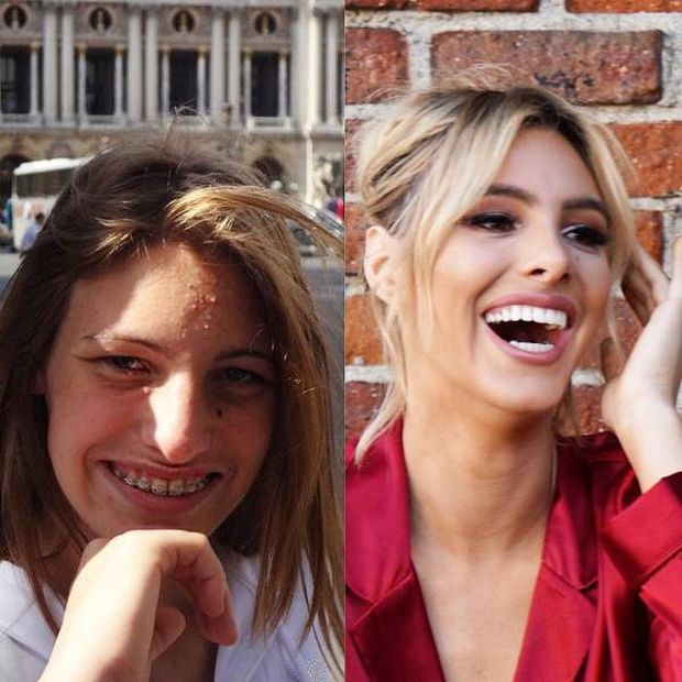 How Plastic Surgery Can Change Your Life (7 pics)