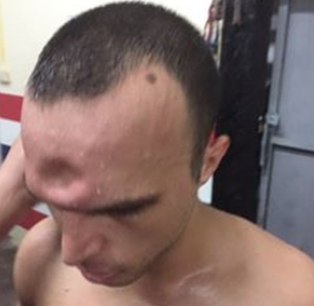 Muay Thai Fighter Suffers Horrific Injury After Getting Elbowed In The Head (3 pics)