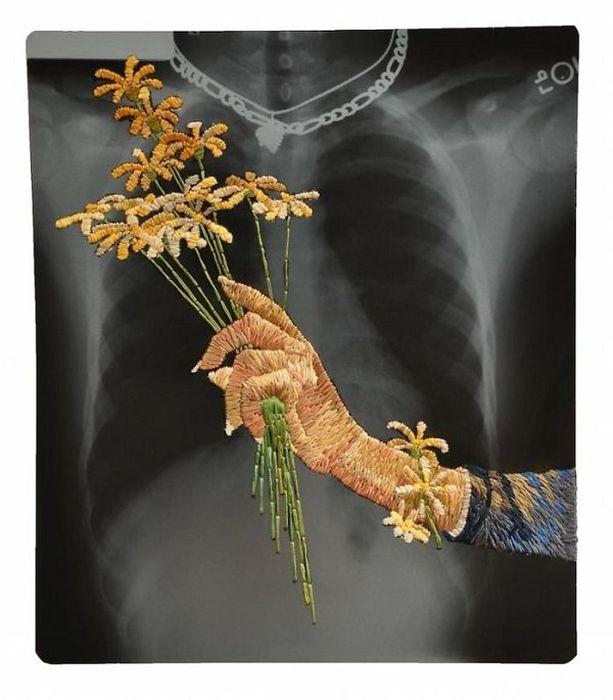X-Ray Art (23 pics)