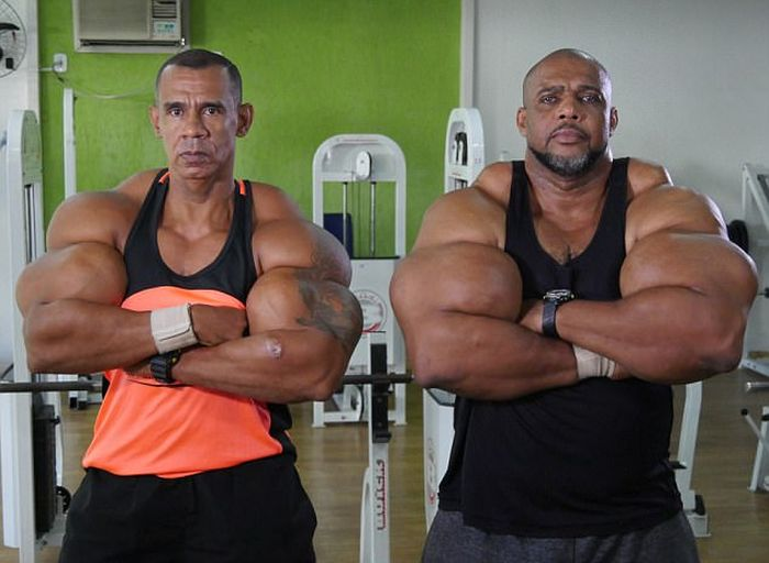 Brazilian Brothers Inject Themselves With Dangerous Chemicals To Create Biceps (6 pics)