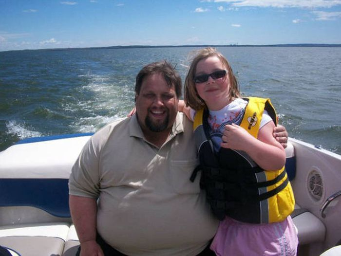 This Guy Has Lost A Lot Of Weight (13 pics)