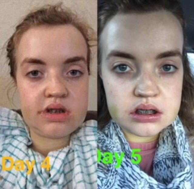 Before And After A Plastic Surgery (8 pics)