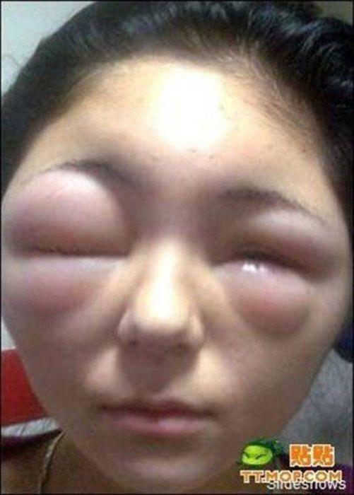When Allergy Strikes (19 pics)