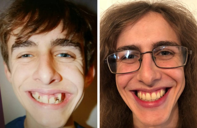 Before and After Photos (16 pics)