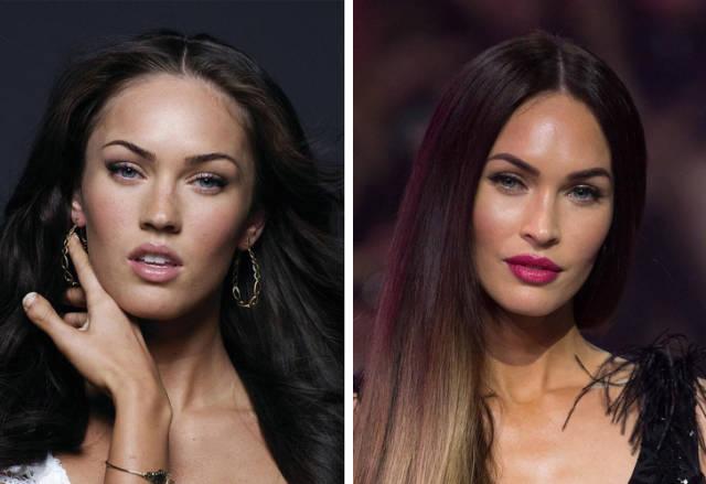 Celebrities Before Plastic Surgery (10 pics)