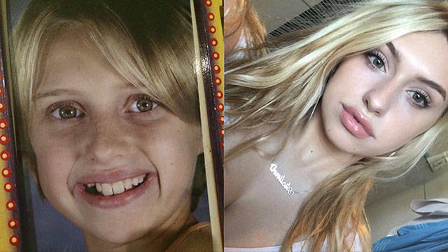 They Used To Be Ugly Ducklings (23 pics)