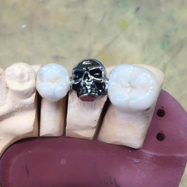 Skull Tooth Crowns (3 pics)