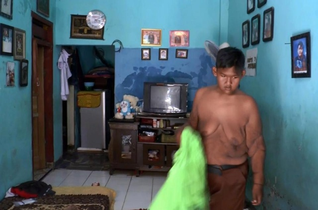Indonesia's Fattest Kid Lost Half His Body Weight (9 pics)