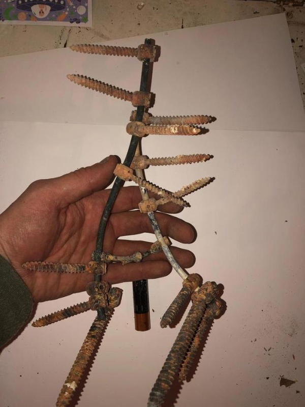 Surgery Hardware From One Guy's Dad's Body After The Cremation (7 pics)