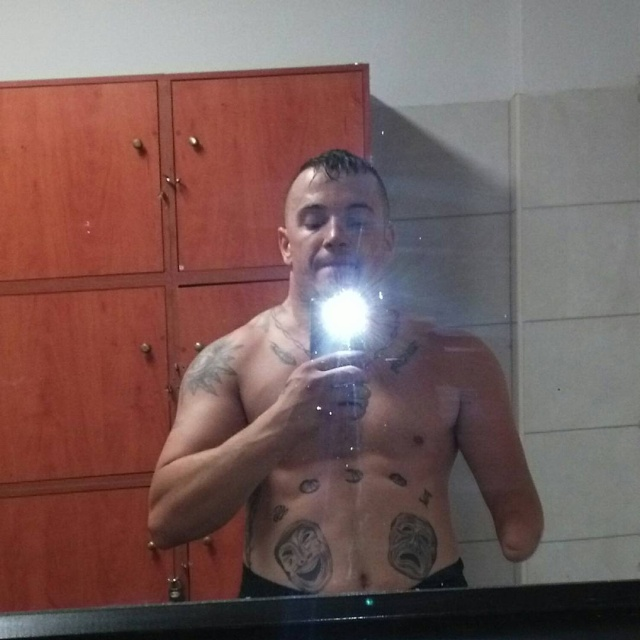 Evangelos Khatzis Is The Only Professional Boxer With A Partially Amputated Hand (15 pics)