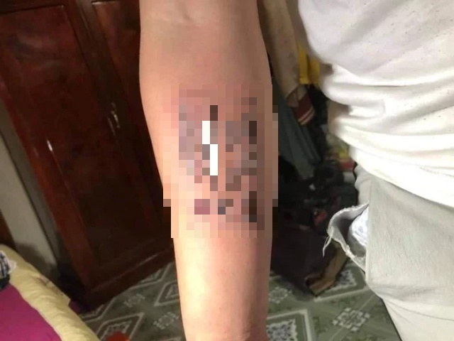 Guy Who Always Forgot His ID Card Has It Tattooed on Forearm (2 pics)