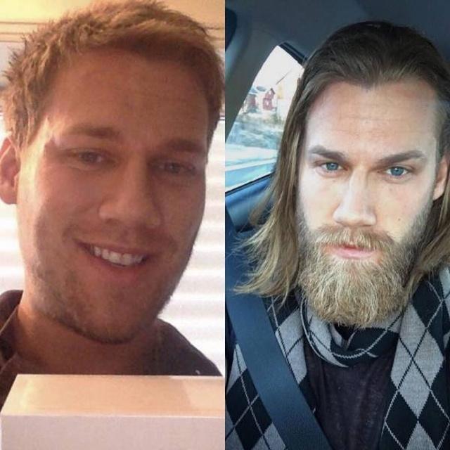 Beards Really Do Matter (20 pics)