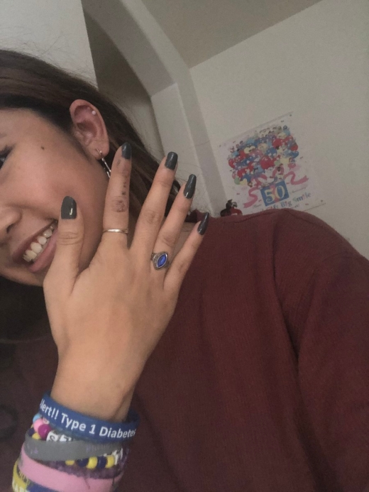 This Girl Has Four Fingers On One Of Her Hands (4 pics)