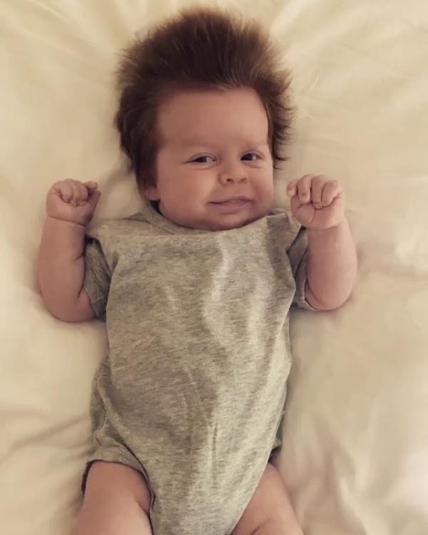 Hairy Baby (10 pics)