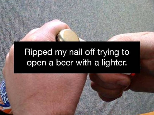 People Always Find Ways To Injure Themselves (20 pics)