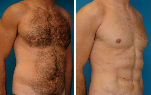Plastic Surgeons Have Developed A New Liposuction Technique That Creates Chiseled Abs (3 pics)
