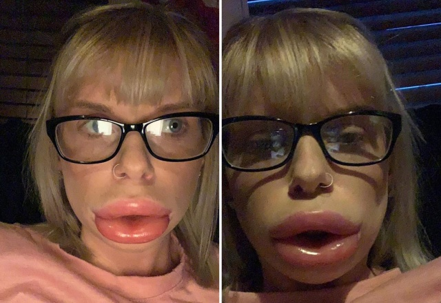 Woman Was Left With Swollen Lips Because Of Numbing Cream Used As Part of At-home Lip Fillers (3 pics)