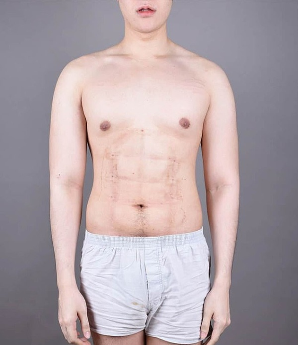24-year-old Man Spent $4,000 On Surgery To Have Fake Stomach Muscles (9 pics)