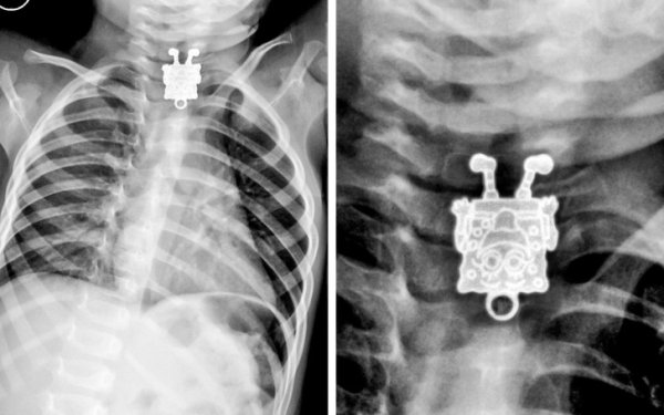 Interesting X-Rays And Scans (22 pics)