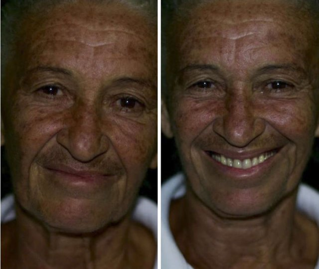 Brazilian Dentist Travels To Treat The Teeth Of Poor People For Free (30 pics)