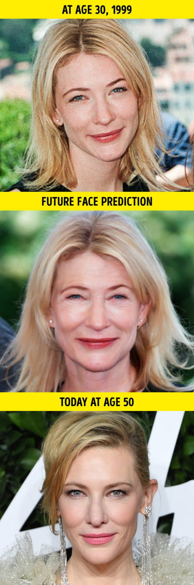 How Celebrities Will Look Like Without Plastic Surgery (10 pics)