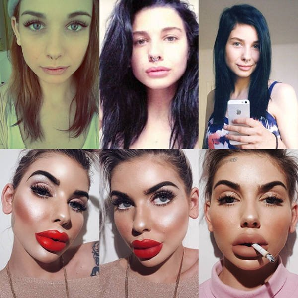 Plastic Surgery Went Wrong (20 pics)