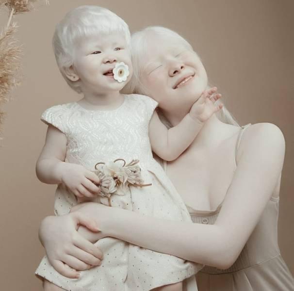 Beautiful Photos Of Albino Sisters (15 pics)