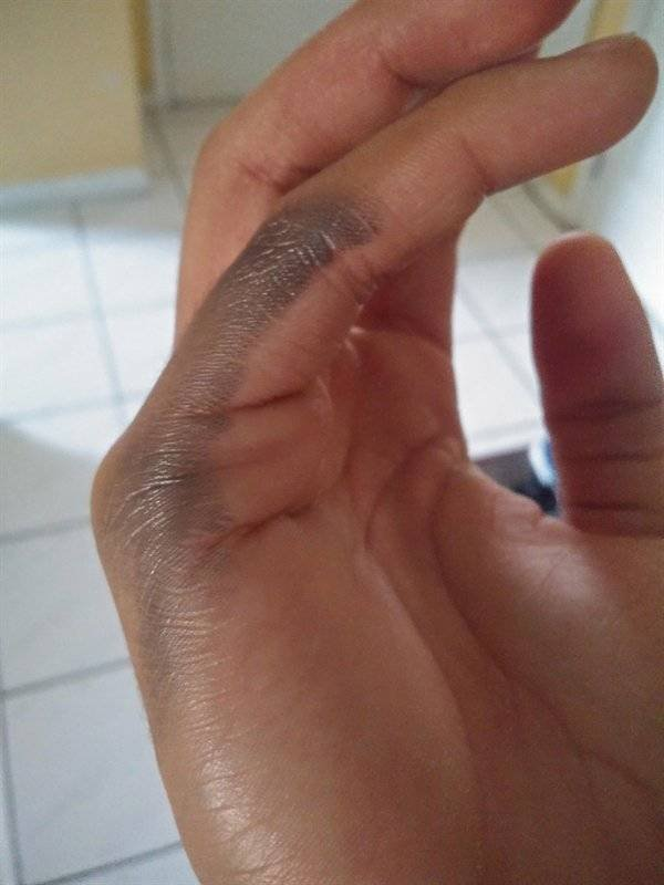 This Is How Pain Looks Like (27 pics)