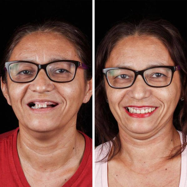 Brazilian Dentist Treats Poor People For Free (22 pics)