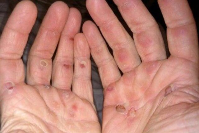 These Everyday Actions Can Deform Your Body (18 pics)